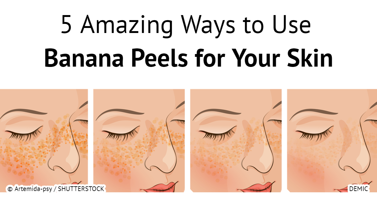 5 amazing ways to use banana peels for your skin hangover cure - 5 Amazing Ways to Use Banana Peels for Your Skin – Hangover Cure