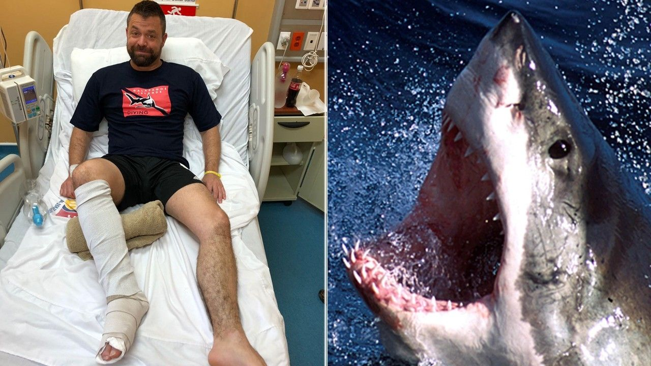 1518074926 warning graphic content man punches shark that was mauling his foot exposing bones and tendons - WARNING, GRAPHIC CONTENT: Man punches shark that was mauling his foot, exposing bones and tendons
